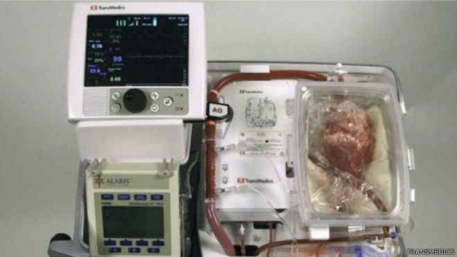 """يوضع القلب في جهاز يسمى """"قلب في صندوق"""" للحفاظ على نشاطه ونبضه لمدة 3 ساعات أخرى قبل إجراء الجراحة"""