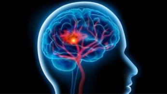 السكتة الدماغية : السكتة أو الجلطة الدماغية هي ثاني مسبب للوفاة في العالم، ويلقي أكثر من 6 ملايين إنسان حتفهم سنويا بسبب أمراض الدماغ. والسكتة الدماغية هي ليست من أكثر الأمراض المسببة للوفاة فحسب، بل من أخطرها. وتحصل السكتة عندما يقل الأوكسجين في الدماغ. ومن أعراضها حالة الدوار وصداع الرأس وفقدان الرؤية والآلام الكبيرة في الرأس