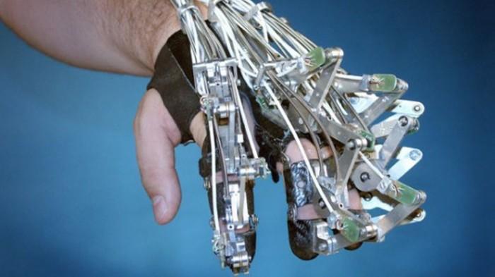 جهاز كمبيوتر عاقل يتحكم في أطراف اصطناعية