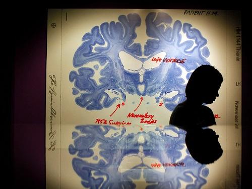 سيدة تبتعد ويظهر خلفها شريحة عرض لمخ الإنسان