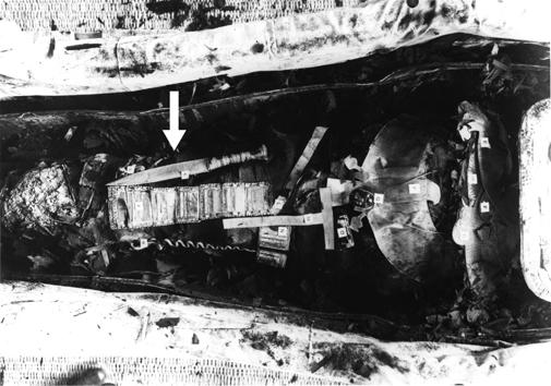 السهم يشير الي مكان الخنجر الذي وجد فوق مومياء الملك توت عنخ آمون