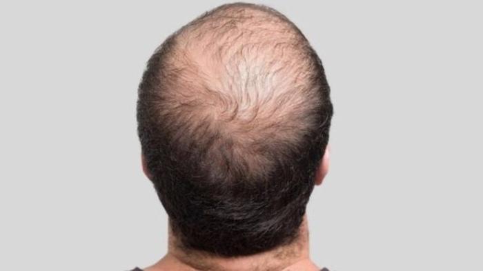 الدواء يستخدم أصلا لعلاج هشاشة العظام ويثبط عمل بروتين يتسبب في تساقط الشعر