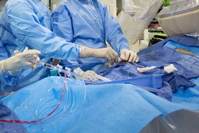 جراحون يجرون عملية في القلب في مستشفى ماونت سيناء في نيويورك، فبراير 2017