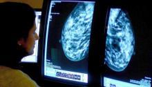 باحثة في اسباب مرض سرطان الثدي